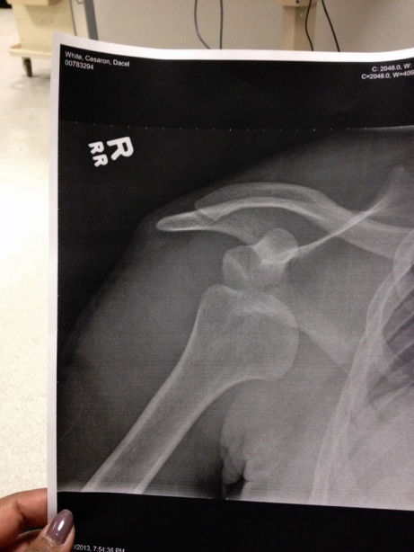 xray of my dislocated shoulder