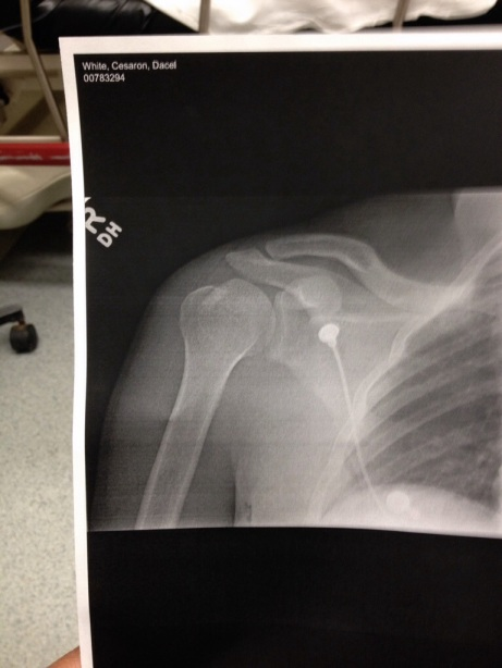 xray of my fixed shoulder
